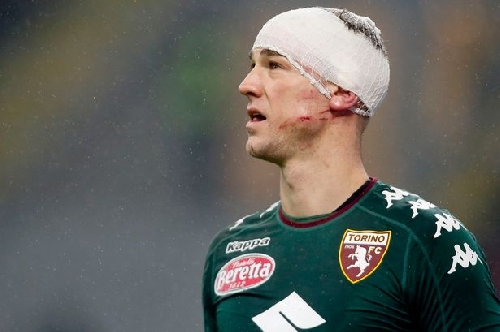 Joe Hart suffers horror injury in Torino vs AC Milan clash