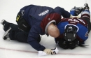 It looked awful, but Avalanche winger Matt Nieto isn't seriously injured