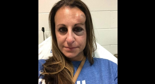 After getting hit by puck, Tampa mom wary about hockey games