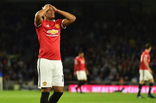 Manchester United player Anthony Martial absence vs Watford explained