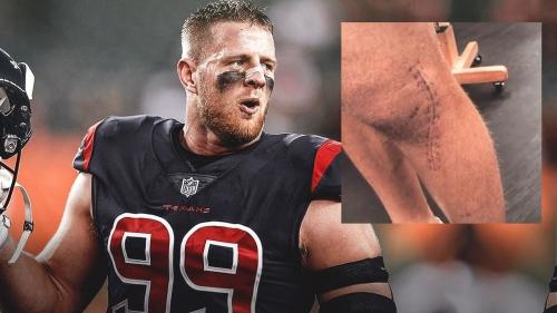 Texans' J.J. Watt shows giant leg scar from season-ending injury in Reebok commercial