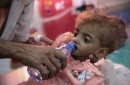 Grupo: el hambre habría matado a 85.000 niños en Yemen