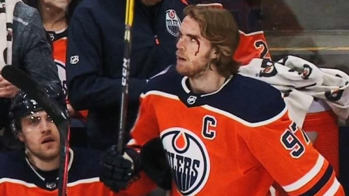 Connor McDavid bloody & mad after Hamonic brings him down