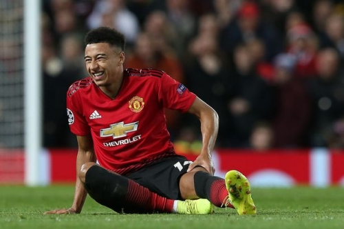 Manchester United get mixed news on Anthony Martial and Jesse Lingard injuries