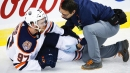 Source: McDavid has posterior cruciate ligament (PCL) injury