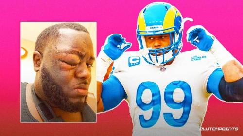 Rams star Aaron Donald facing assault charges